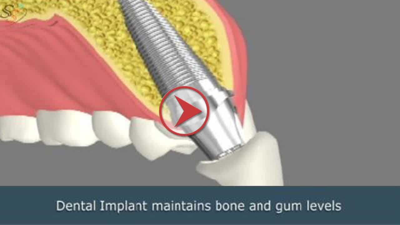 Dental Implants Services in Key West Florida