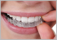 Clear Braces in Key West Florida