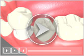Dental Crowns Services in Key West Florida